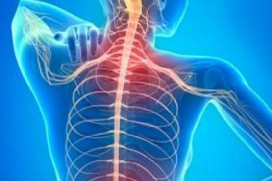 Nueva droga para el tratamiento de la esclerosis múltiple