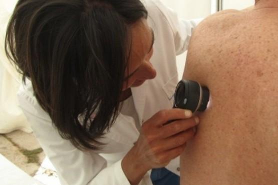 Realizarán controles gratuitos para prevenir el cáncer de piel