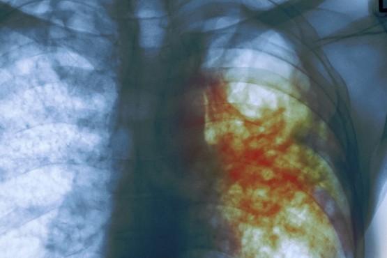 Recomendaciones de la OMS en la lucha contra la tuberculosis