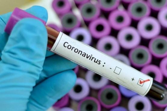 Situación y cuidados por el brote de enfermedad por coronavirus